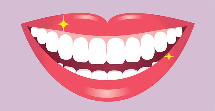 Blanqueamiento de los dientes