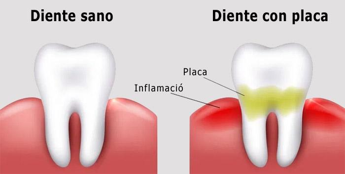 Blanqueamiento dental en el odontologo
