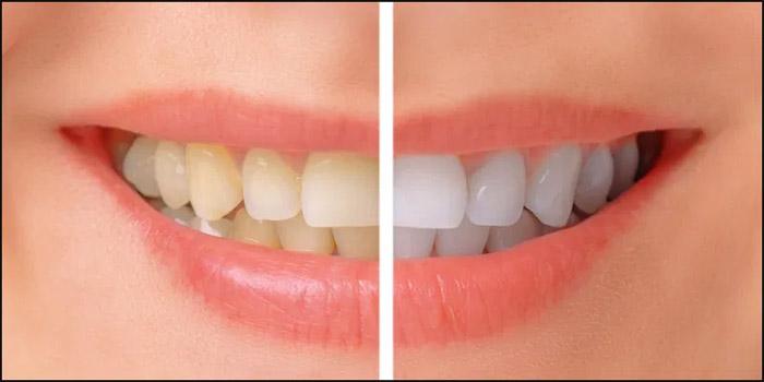 Qué es un blanqueamiento dental