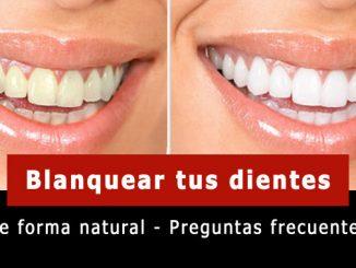 Blanquear tus dientes