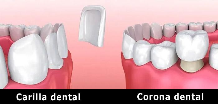 Cuál es la diferencia entre una corona y una carilla dental