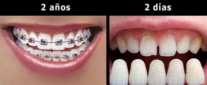 Carillas dentales u ortodoncia