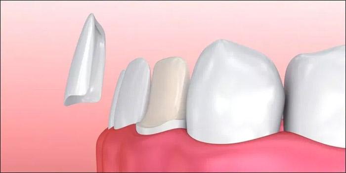 Qué es una carilla dental