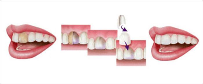 Cómo aplicar carillas dentales