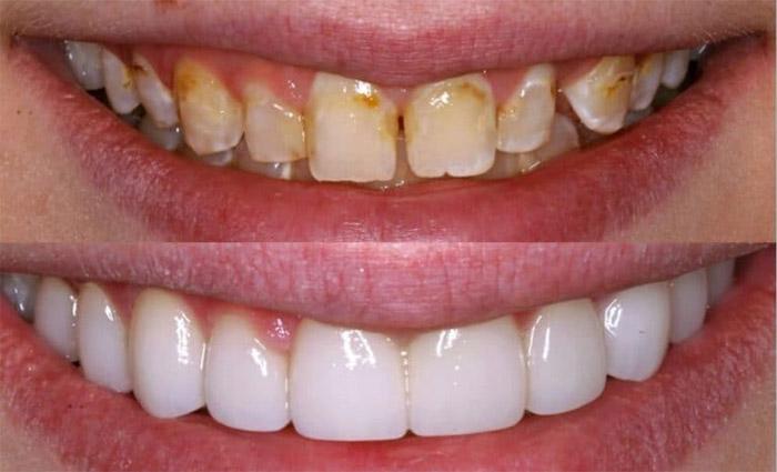 Carillas dentales 100% porcelana