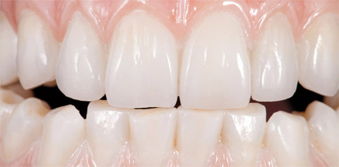 Carillas dentales en zirconio