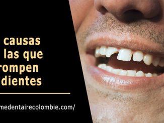 Causas dientes rotos
