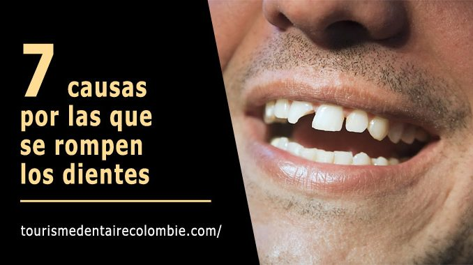 Causas dientes rotos