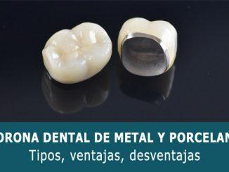 Corona dental de metal y porcelana
