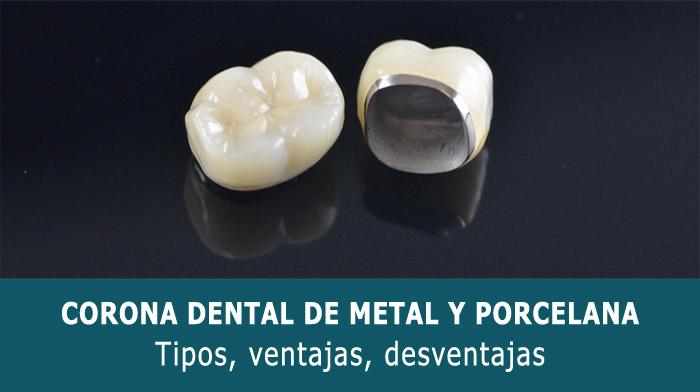 corona-dental-metal-porcelana