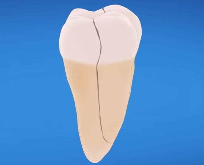 diente-agrietado