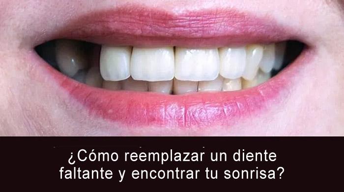 diente-faltante