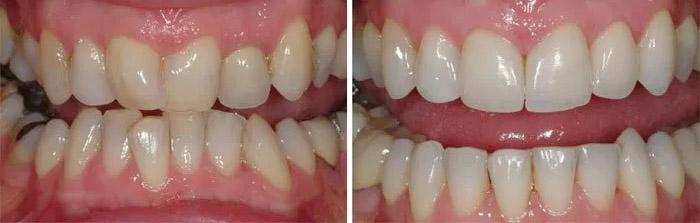 diente-torico