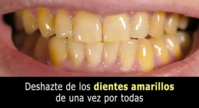 dientes-amarillos