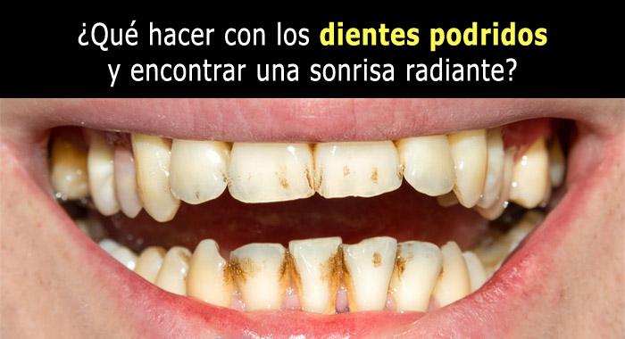 dientes-podridos