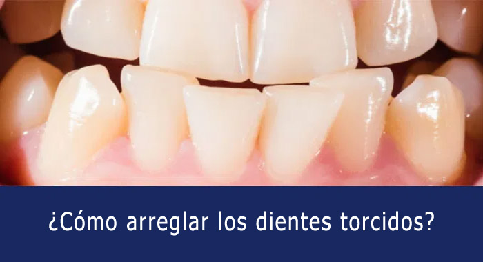 dientes-torcidos