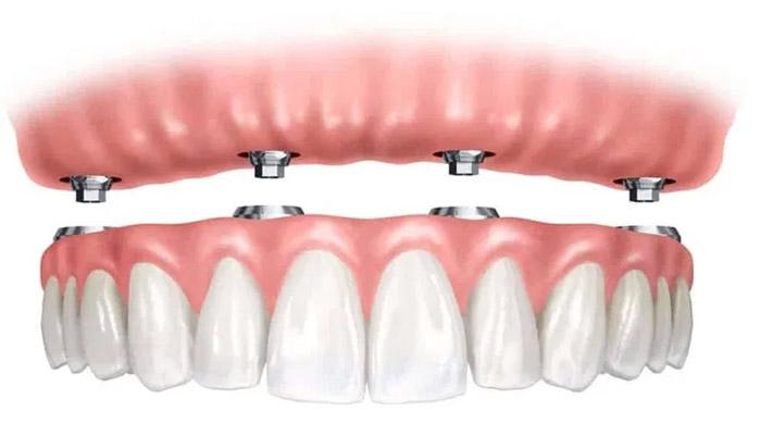 Reemplazo de todos los dientes con implantes dentales