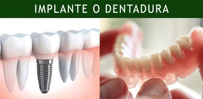 Dentadura o implante dental