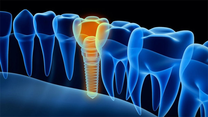 Cuáles son las desventajas de los implantes dentales