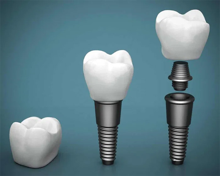 Cuánto tiempo dura el procedimiento de implante