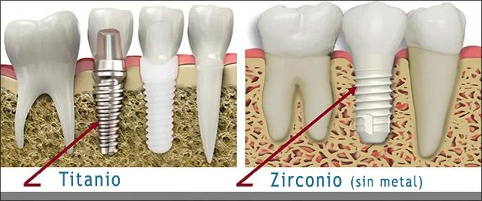 Material de un implante dental