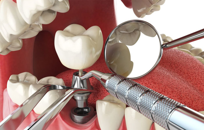 Por qué necesita un implante dental