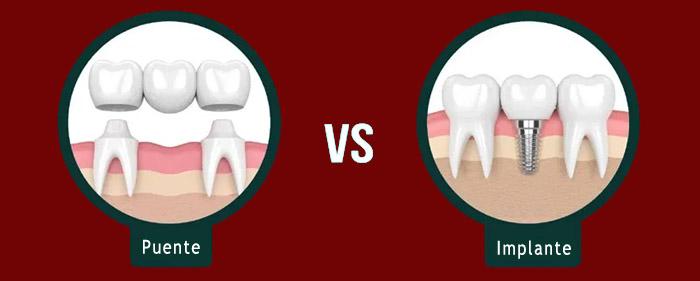 Puente dental y implante