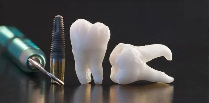 Cuáles son los riesgos de un implante dental