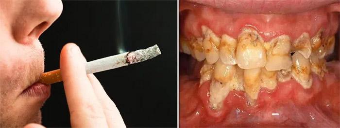 Quién puede tener un implante dental