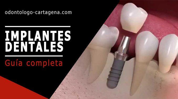 Implantes dentales en Cartagena Colombia