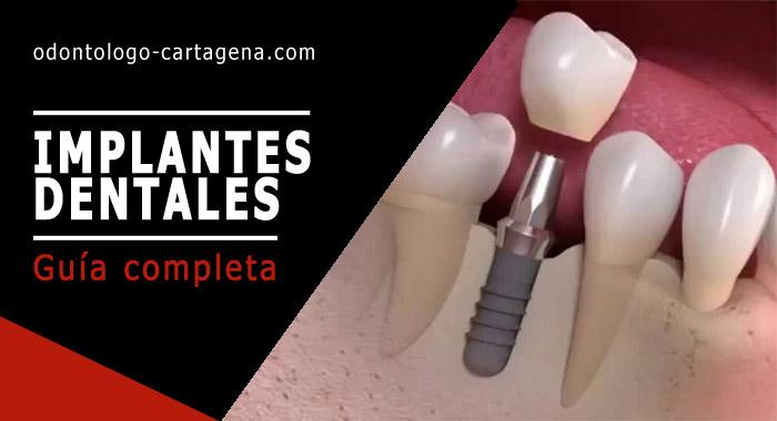 implantes-dentales-cartagena