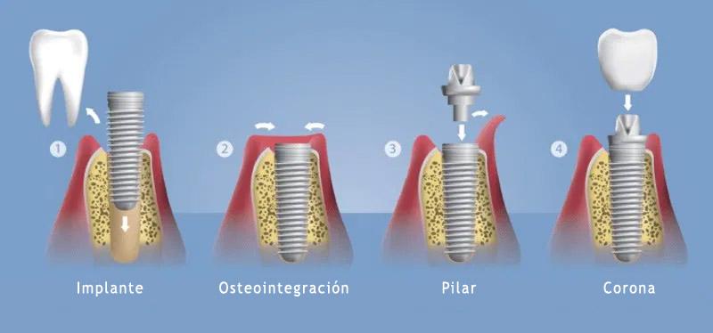 implantes-etapas