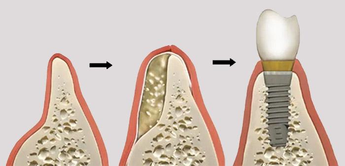 Cómo se realiza el injerto óseo
