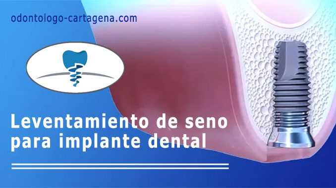 Leventamiento de seno para implante dental
