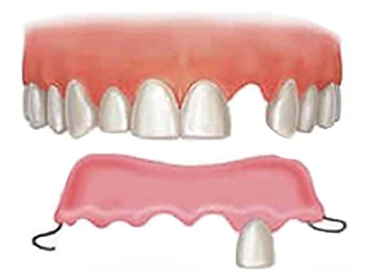 Ventajas y desventajas de la dentadura parcial