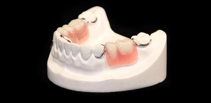Cómo se hace una dentadura parcial
