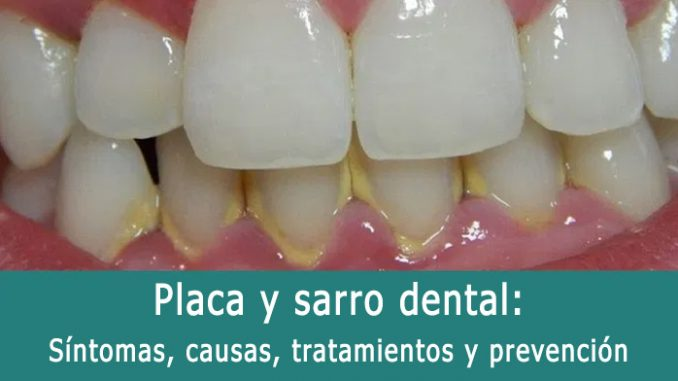 Placa y sarro dental