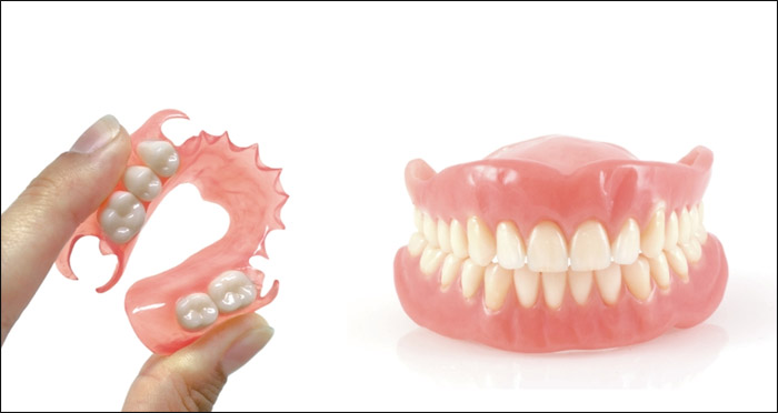 Tipos de dentaduras postizas
