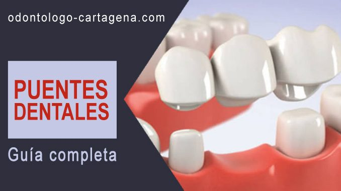 Puente dental Cartagena