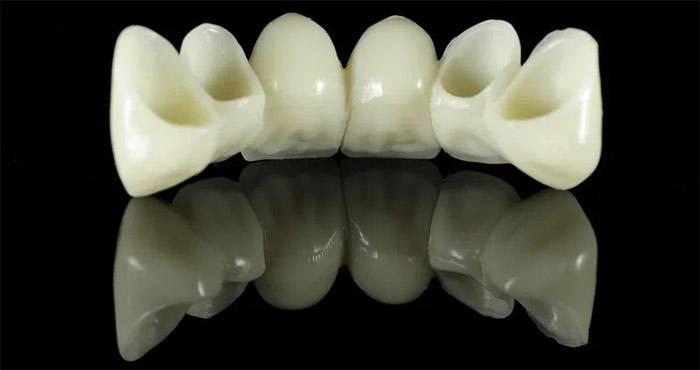 Cuántos dientes se pueden reemplazar con un puente dental