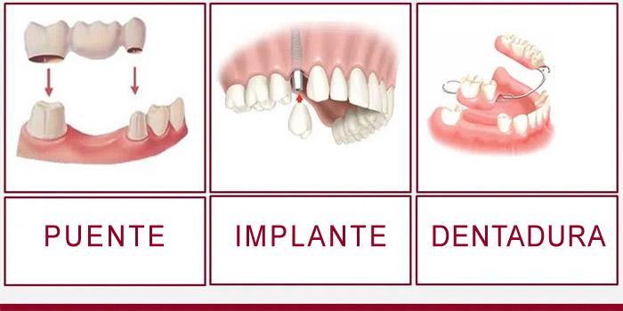 Implante o puente dental: ¿cuál es mejor