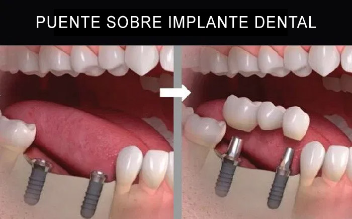 Puente sobre implante dental