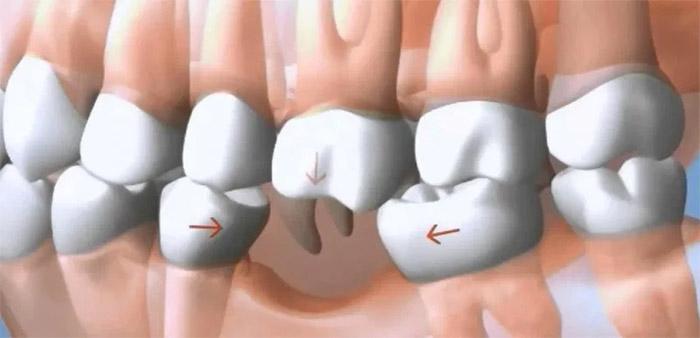 si no reemplazo un diente faltante
