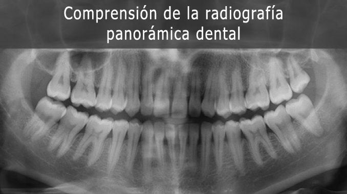 Radiografia panoramica dental