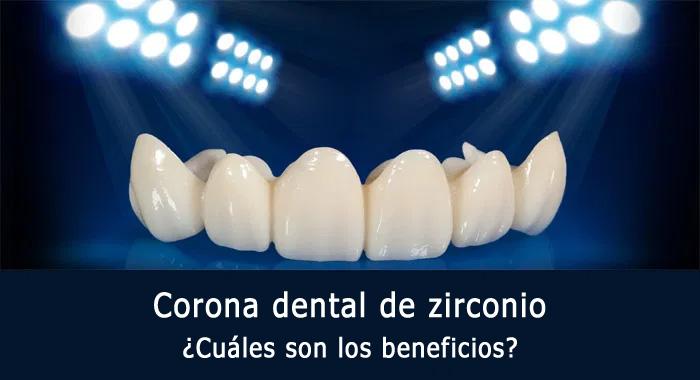 corona-zirconio