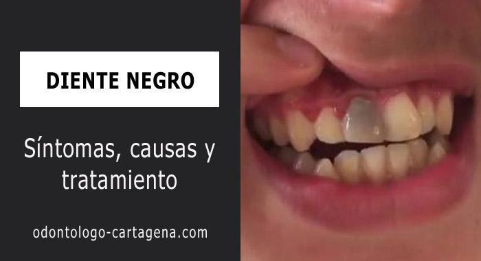 diente-negro