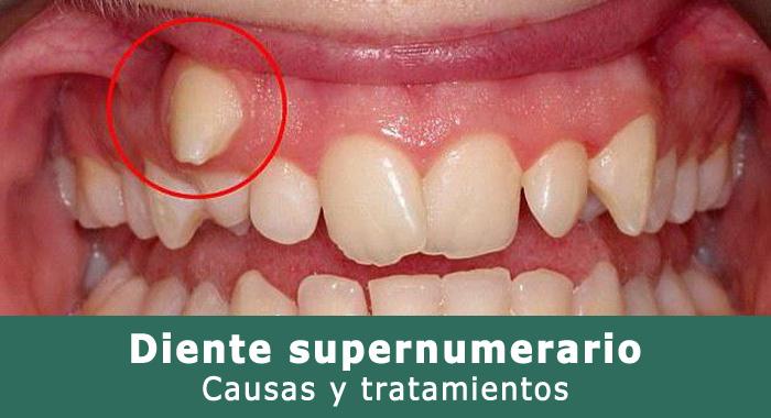 diente-supernumerario