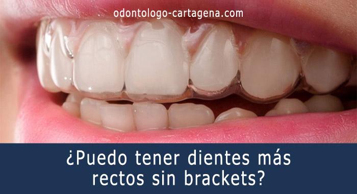 dientes-sin-brackets
