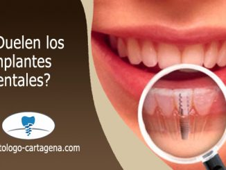 Implante dental duele