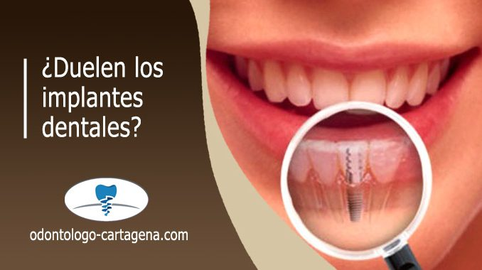 Implante dental duele